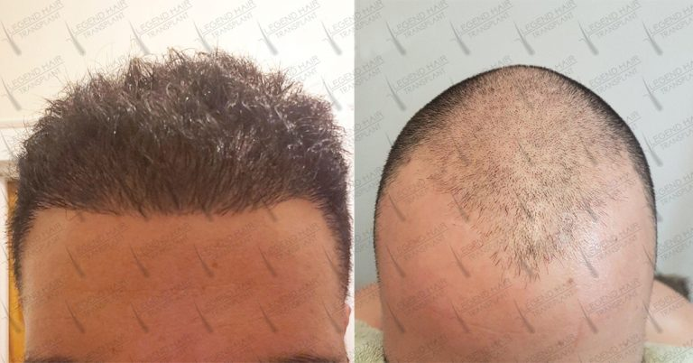 Hair Transplant Turkey